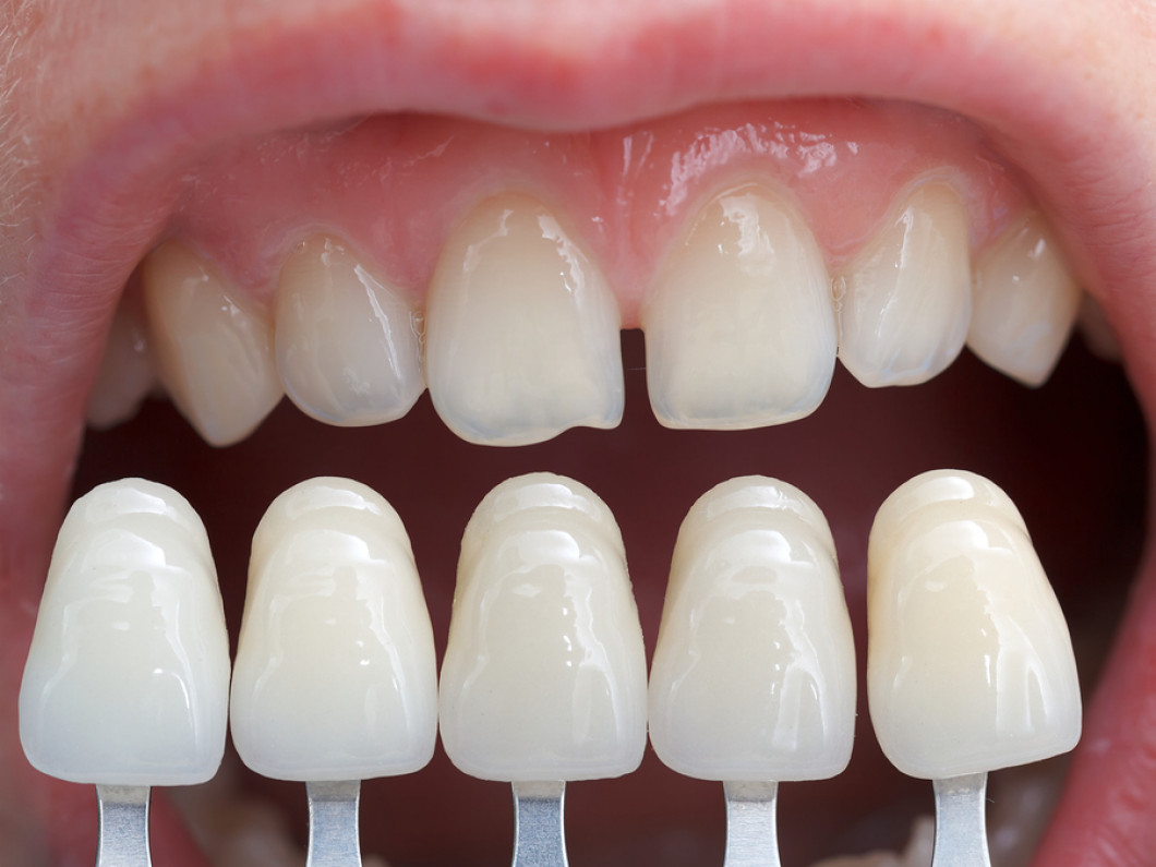 Create a Newer, Whiter Smile