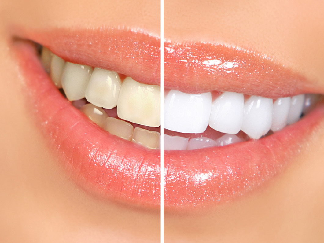 Whiten your Smile Easily